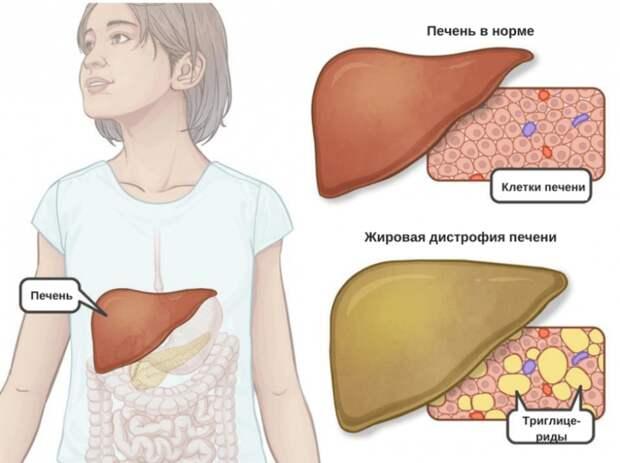 Как поддержать печень при жировой болезни