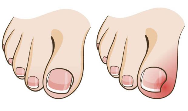 Дедушкин совет лечения вросшего ногтя