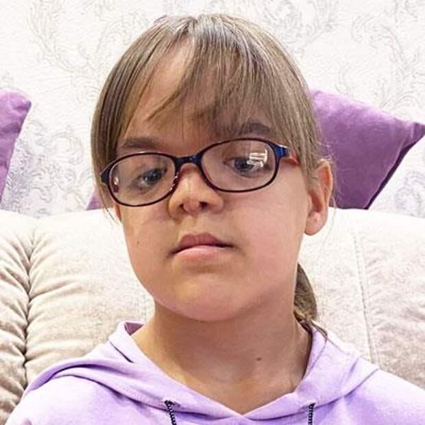 Ксюша Тышковец, 12 лет, черепно-фронтоназальная дисплазия, недоразвитие средней зоны лица, дефект развития челюстей, сужение зубных рядов, требуется ортодонтическое лечение, 225795₽