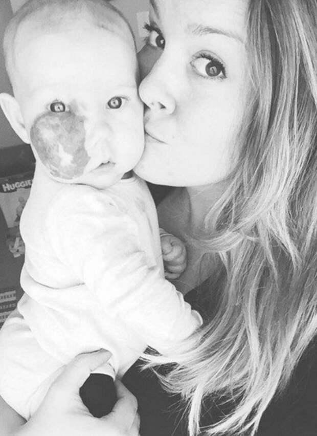 Эта девочка родилась с огромной родинкой на лице. Вот что сделала мать, чтобы защитить свое дитя!
