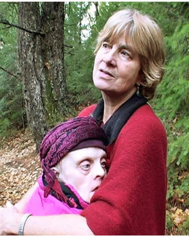Неправильные близнецы Джудит и Джойс Скотт: история сестринской любви