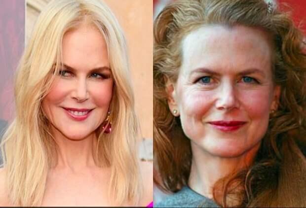 Как бы выглядели знаменитости сейчас, если бы не делали пластику? 3 грустных фото