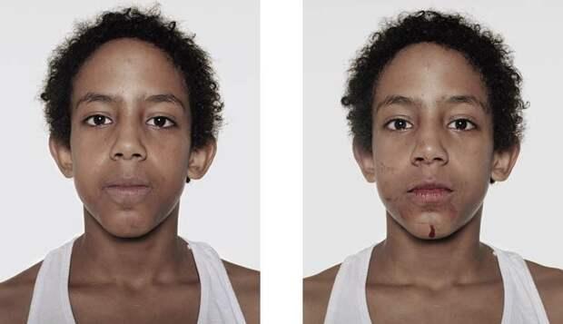 Юные боксеры: до и после боя