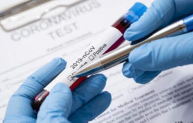 Коронавирус в РК: За прошедшие сутки выявлено 1837 заболевших