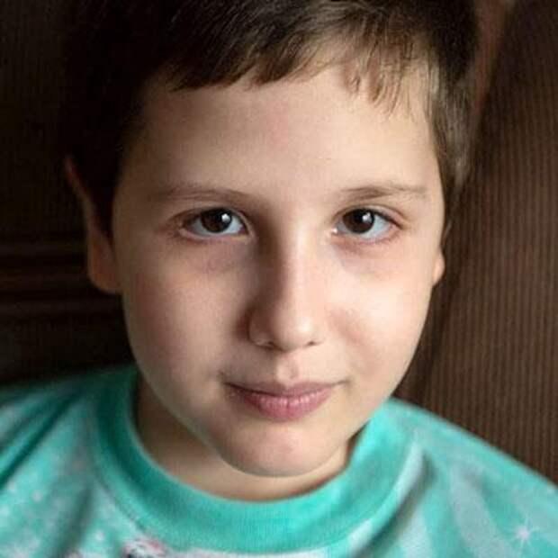 Алеша Кузнецов, 9 лет, несовершенный остеогенез, спасет операция, 798400₽