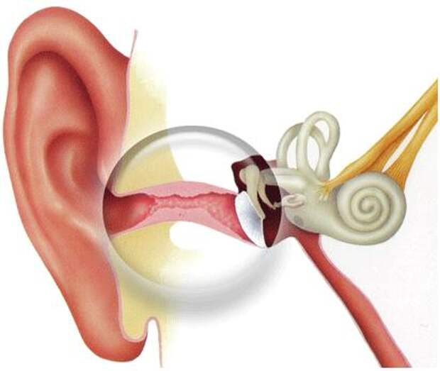 Народные рецепты лечения отита (воспаление среднего уха)