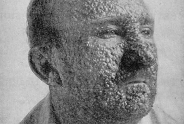Язвы от оспы обильно покрывают кожу головы