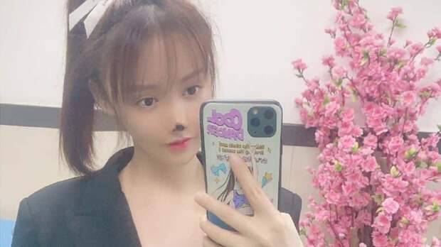 У китайской актрисы Гао Лю отвалился кончик носа после пластической операции