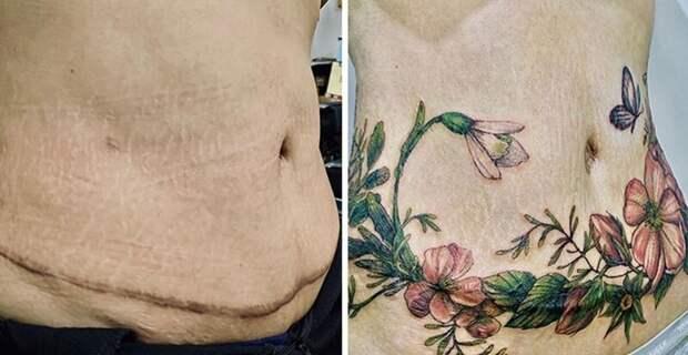 25 татуировок для перекрытия шрамов и других дефектов нателе