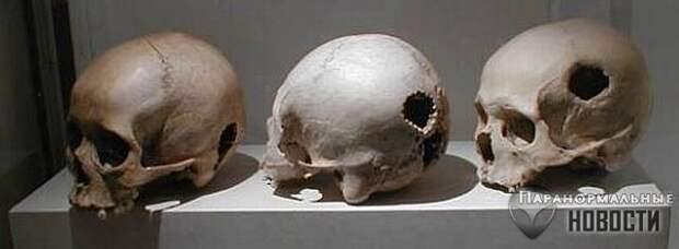 Древние алтайцы практиковали трепанацию черепа