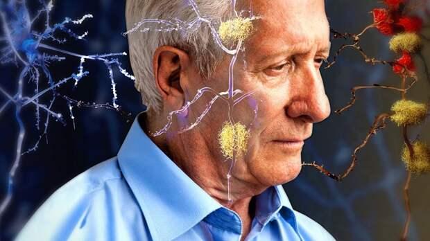 Альцгеймер излечим: российские ученые нашли противоядие