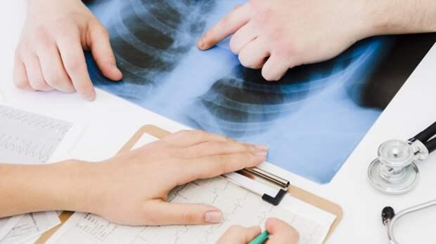 Всемирный день борьбы с туберкулезом: история открытия и статистика в России