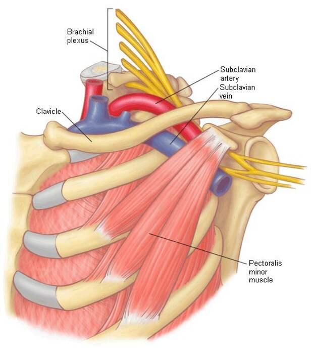 Синдром малой грудной мышцы – причина болезненности, онемения и отека рук