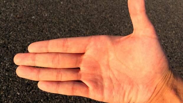 Покалывание в руках назвали одним из признаков дефицита B12