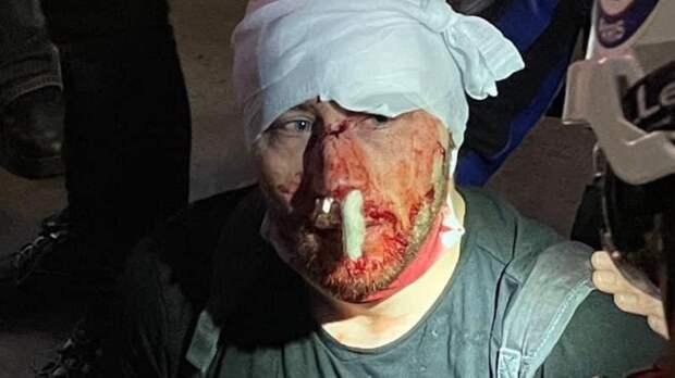Российский фонд поможет сирийскому фоторепортеру, избитому полицией в Париже