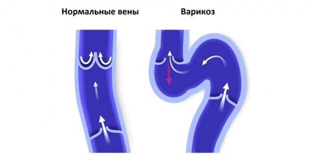 Нормальные вены и вены с варикозом