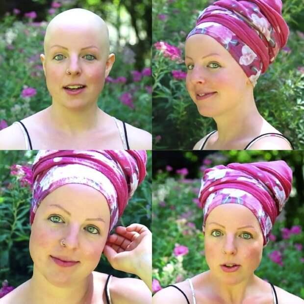 Лысая Лиза. Монолог девушки, потерявшей все волосы