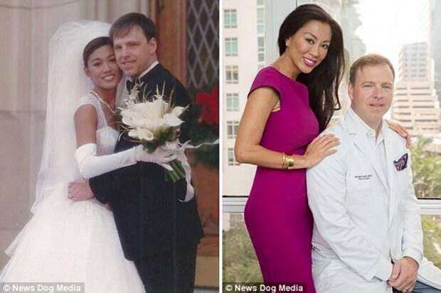 Я люблю делать редизайн жены: Пластический хирург создал свою идеальную невесту