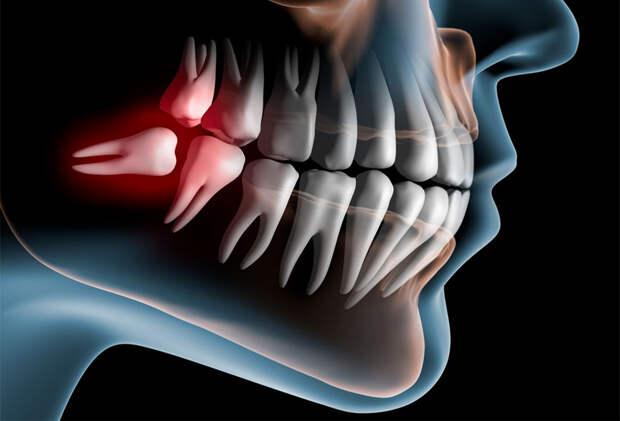 Импланты могут уйти впрошлое: учёные нашли способ вырастить новые коренные зубы