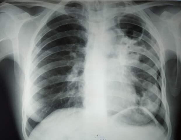 В Подмосковье сбежал больной открытой формой туберкулеза мужчина