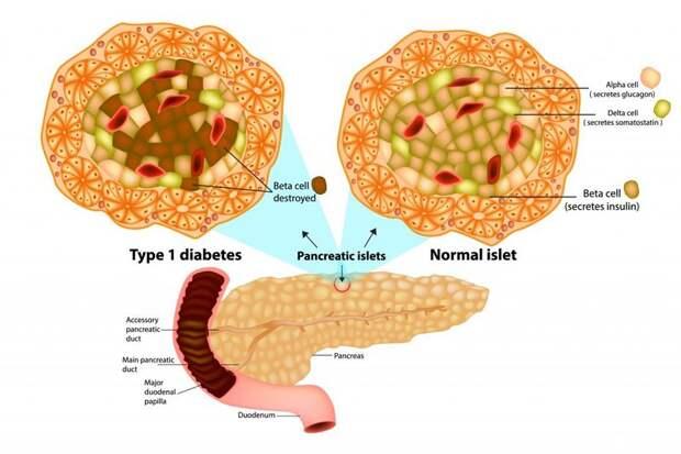 LADA: Скрытый аутоиммунный диабет в зрелом возрасте