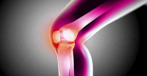 Артрит: 5 природных средств для быстрого устранения болей и отёков суставов (видео)