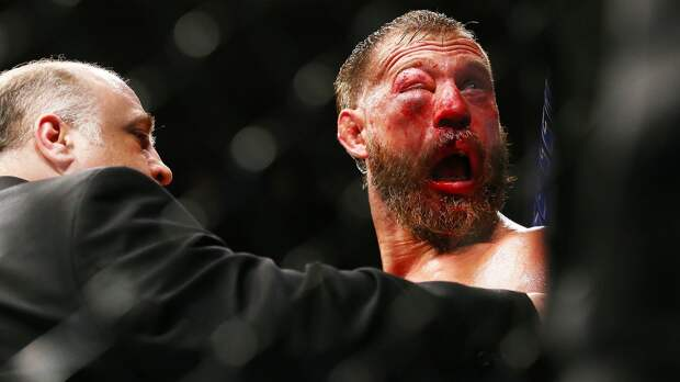 Врач непустил Серроне продолжать бой сФергюсоном. Его глаз растворился вгематоме
